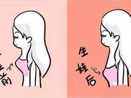 乳房护理:怀孕胸部下垂怎么办?牢记3件事,产后宝宝奶水吃不完