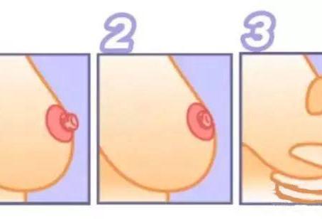 乳头内陷影响喂奶怎么办?乳头内陷是什么样的