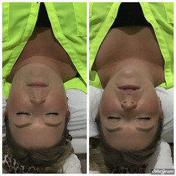 Contouring_Results_13