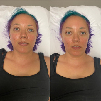 Contouring_Results_10