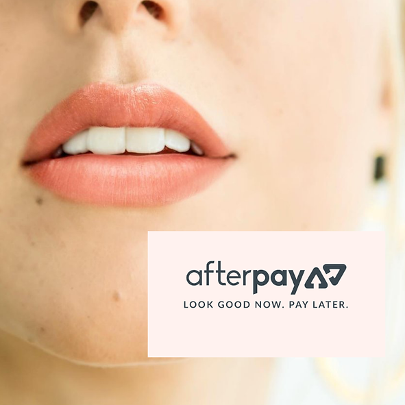 Afterpay available.