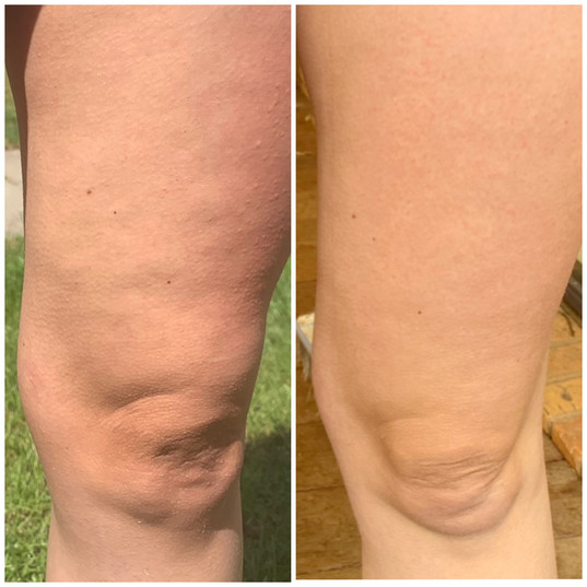 Cellulite reduction with body contouring
