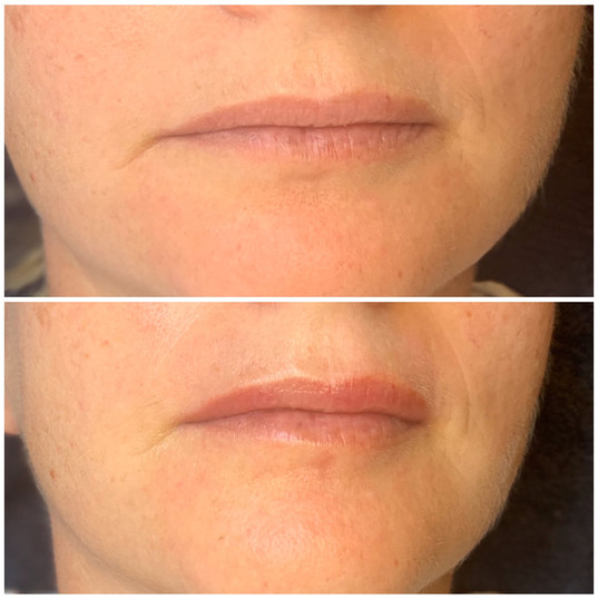 Lip plumping, first session.