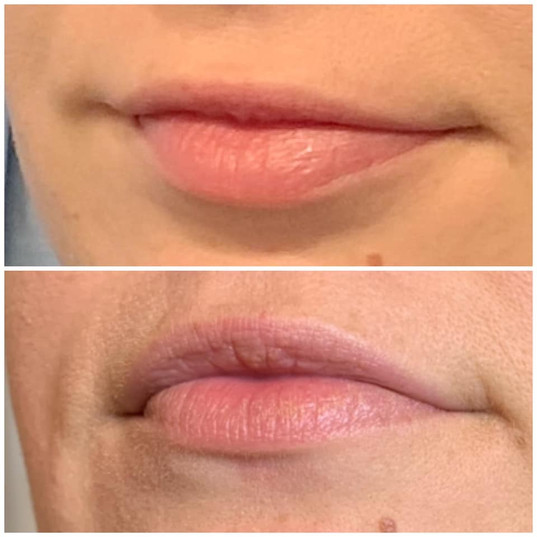 LIp plumping, 2 sessions.