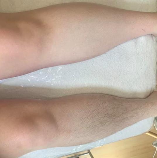Leg waxing.