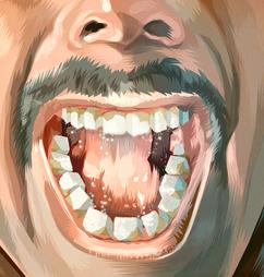 Suger Teeth
