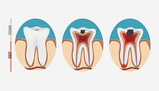 Endodontics - Dentist Miami