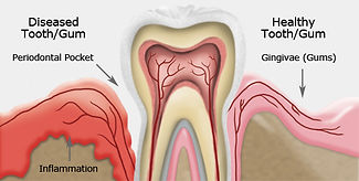 Gum Disease - Periodontal Maintenance