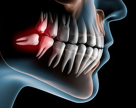 Wisdom Tooth Extraction - Dentist Miami