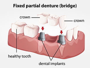 Dental Bridge - Dentist Miami