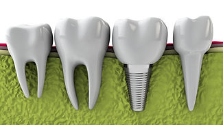 Dental Implants - Dentist Miami