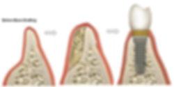 Dental Bone Grafting - Dentist Miami