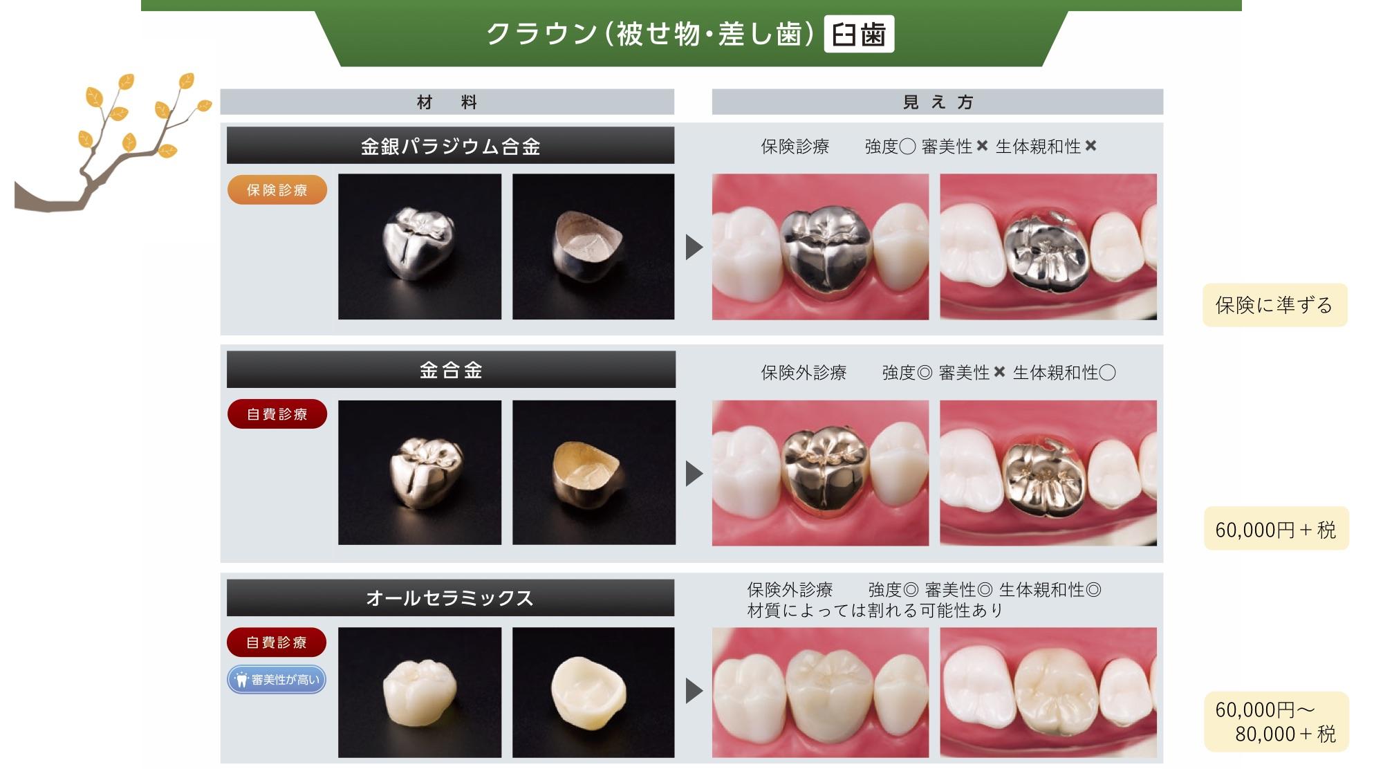 クラウン(臼歯)