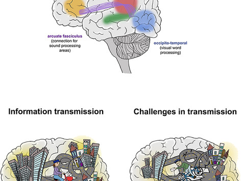 The magical art of magnetic resonance imaging to study the reading brain