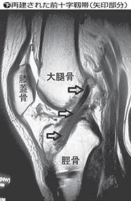 前十字靭帯の再建手術後