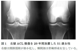 ACL損傷後の変形性膝関節症