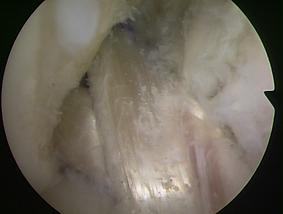 関節鏡で見た再建した前十字靭帯