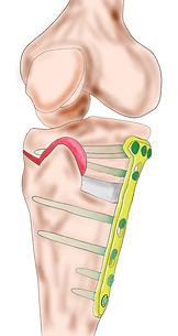 膝関節,川田整形外科,高位脛骨骨切り術,変形性膝関節症