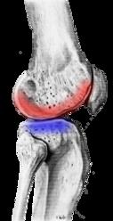 不安定な膝関節