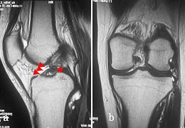 膝前十字靭帯が断裂したMRI