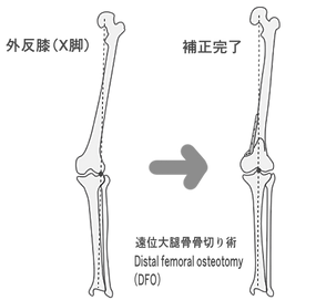 Double Level Osteotmy