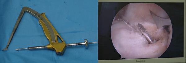 膝前十字靭帯の手術に使うK-wire