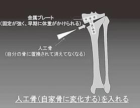 川田整形外科,変形性膝関節症,HTO,高位脛骨骨切り術