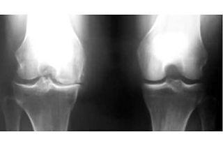 前十字靭帯損傷,放置,変形性膝関節症