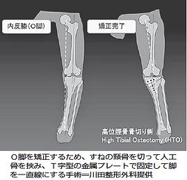 変形性膝関節症に対する高位脛骨骨切り術について