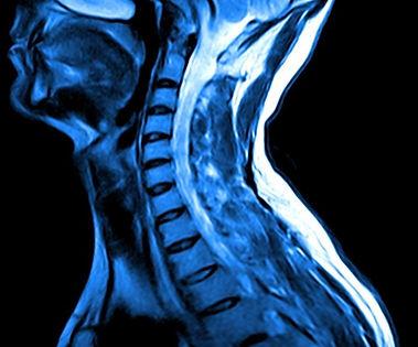 MRI_2.jpg