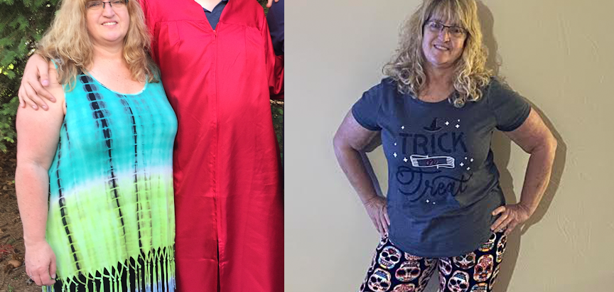 """STORIES OF HOPE:  """"Having my gallbladder taken out was a big mistake"""""""