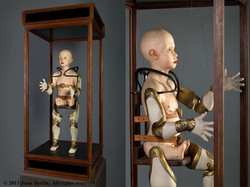 Phocomelic Child With Prosthetic...