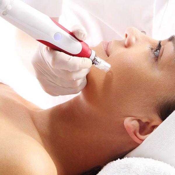 Tratamientos Faciales Dermapen