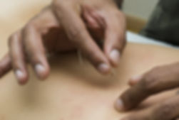 Acupuncture Treatment in Tampa, FL