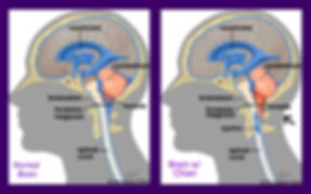 "sagittal diagrams of brain showing cerebellum/tonsils, brainstem above foramen magnum in ""normal"" brain; below foramen magnum in ""brain with chiari"""