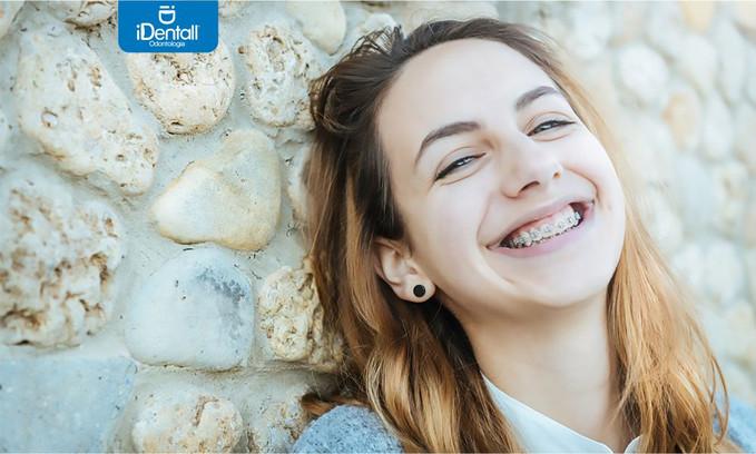Experiencia con el blanqueamiento dental