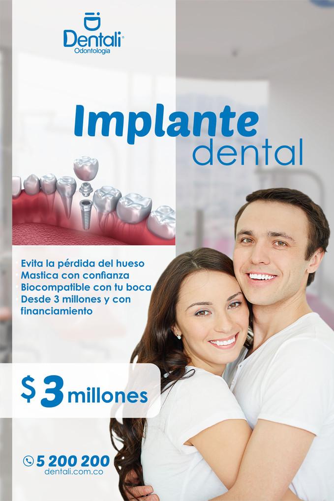 ¡Innovan con nuevas formas de ponerte implantes dentales!