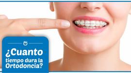 ¿Cuánto dura la ortodoncia?