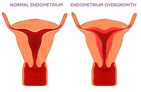Bleedig in Surgical Menopause