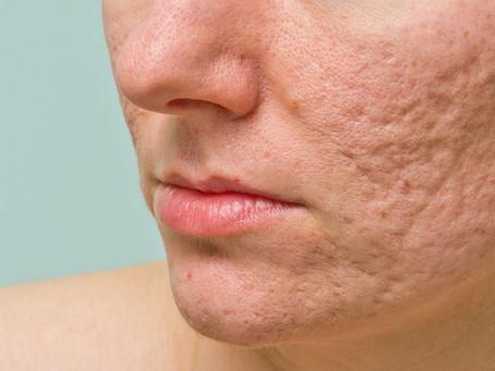 5 dicas para remover cicatrizes de acne