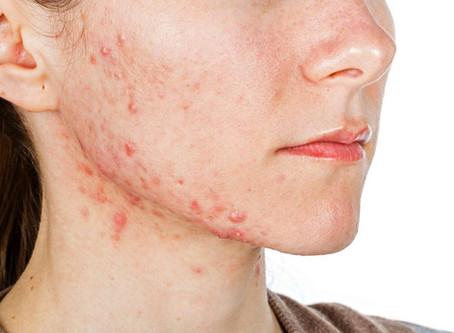 Como proteger a pele da dermatite de contacto?
