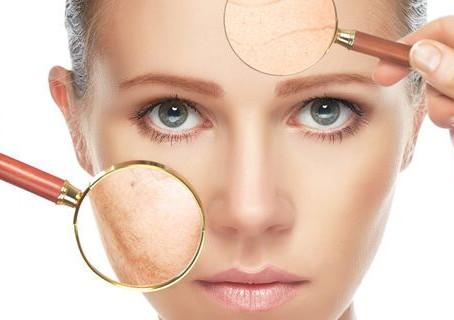 Análise de pele: Sabe diagnosticar a sua?