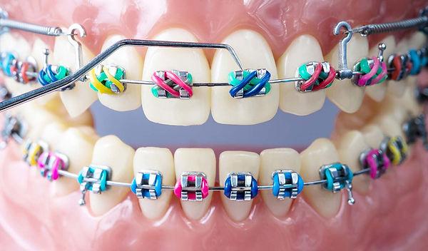 Common-Orthodontics-Treatments.jpg