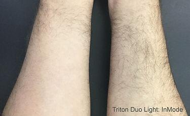 TritonDuoLight_3tx.jpg