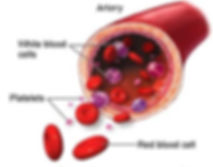 Diagram of platelets and white blood cells