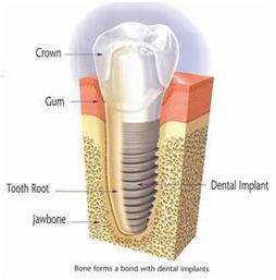 dental-implants3-1.jpg