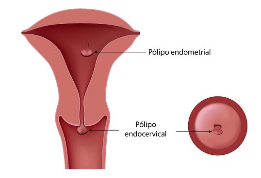 Retirada de pólipo uterino