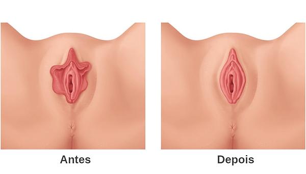 Ninfoplastia.png