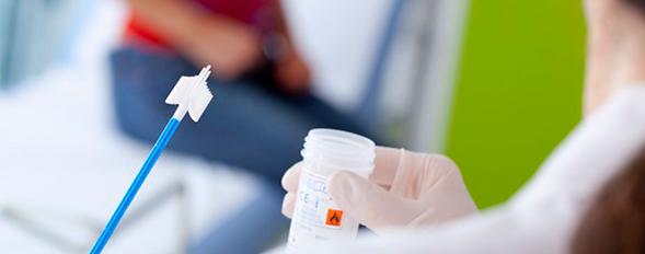 Captura híbrida para HPV