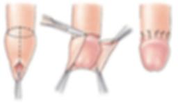 Postectomia (fimose)